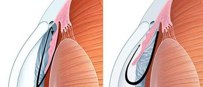 Открытоугольная первичная глаукома. причины, симптомы, диагностика, лечение и профилактика заболевания