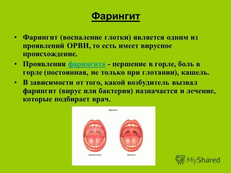 вирусный фарингит симптомы лечение