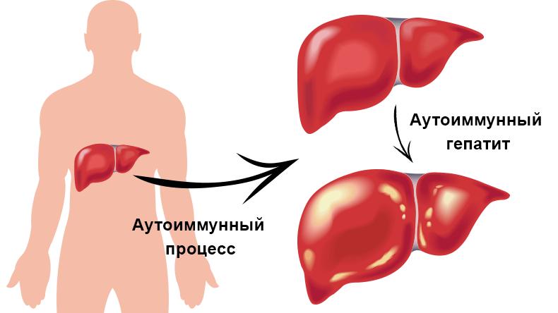 аутоиммунный гепатит симптомы