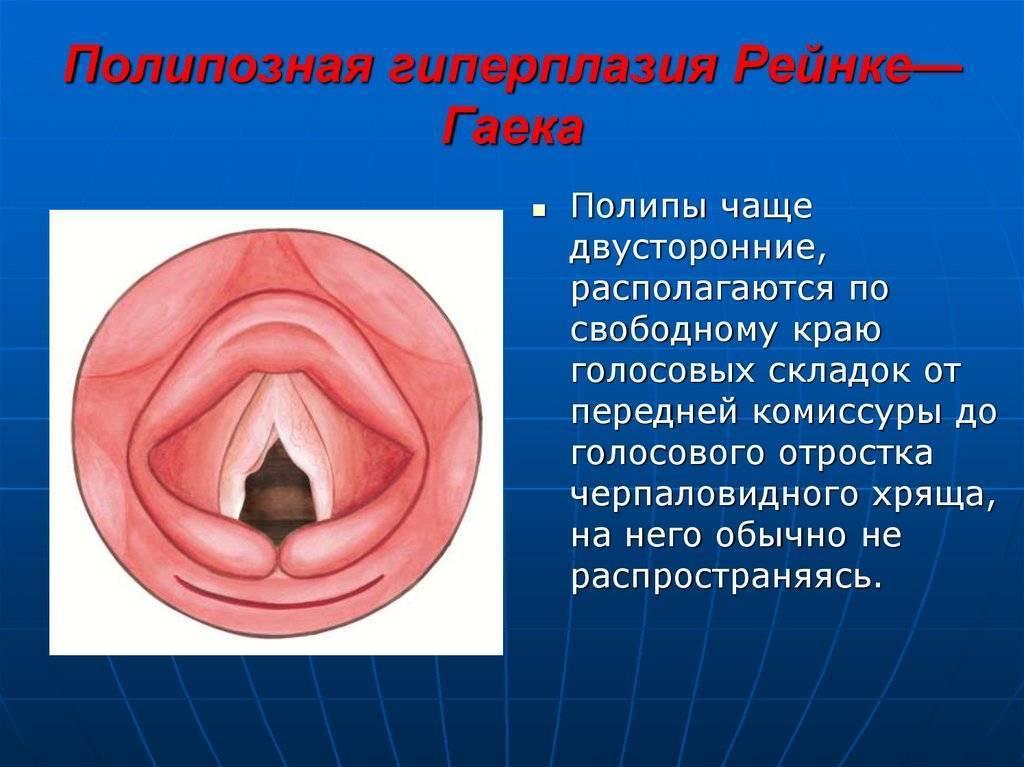 Почему появляются полипы в гортани и как их лечить