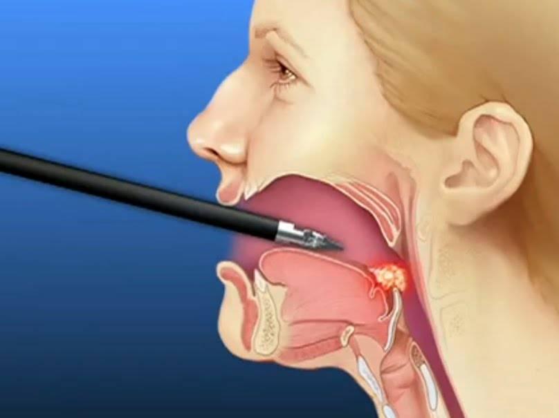 рак горла диагностика