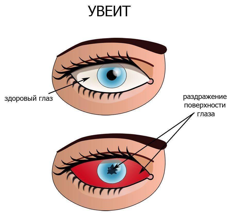 увеит глаза симптомы