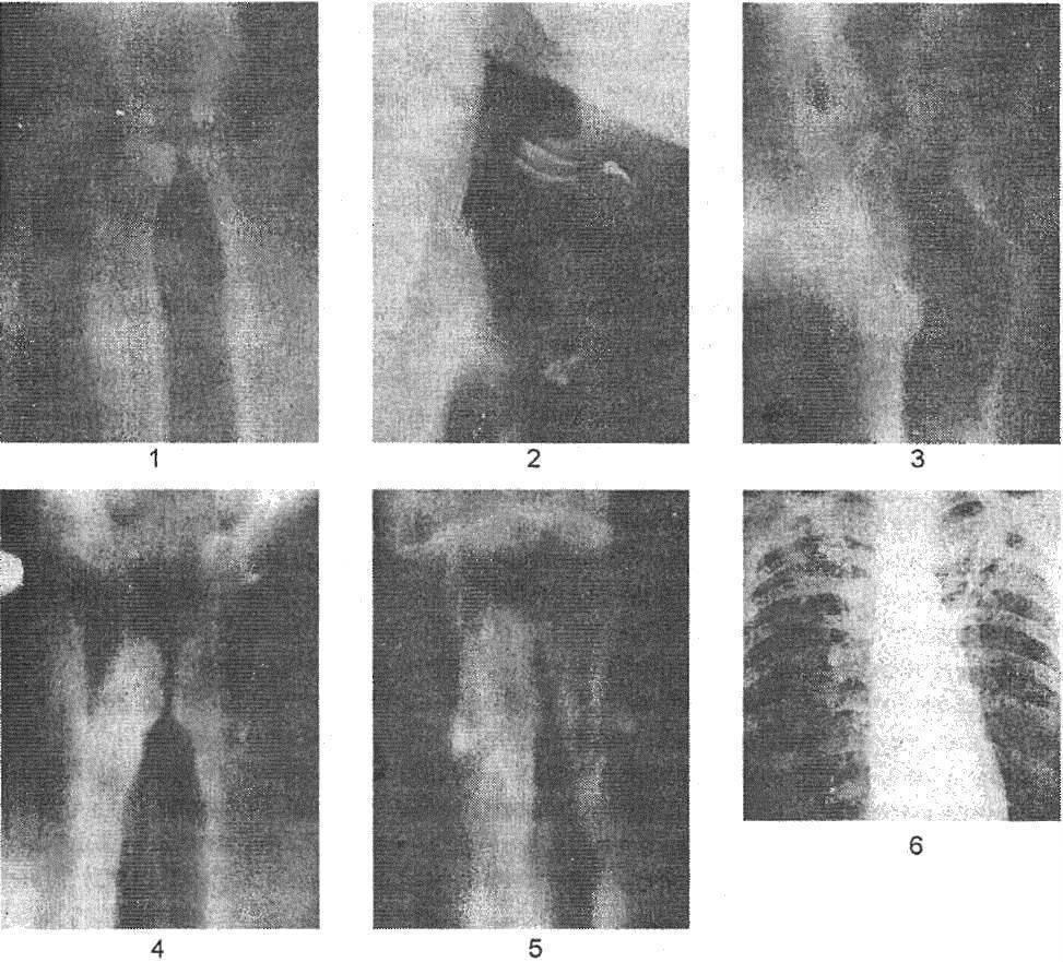 Туберкулез горла симптомы как определить