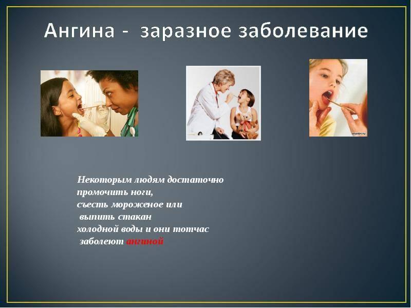 заразна ли ангина без температуры