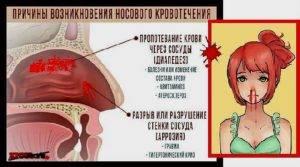 Кровь из носа при беременности: что делать, если идет во время третьего, второго или первого триместра, кровь запекается - корочки