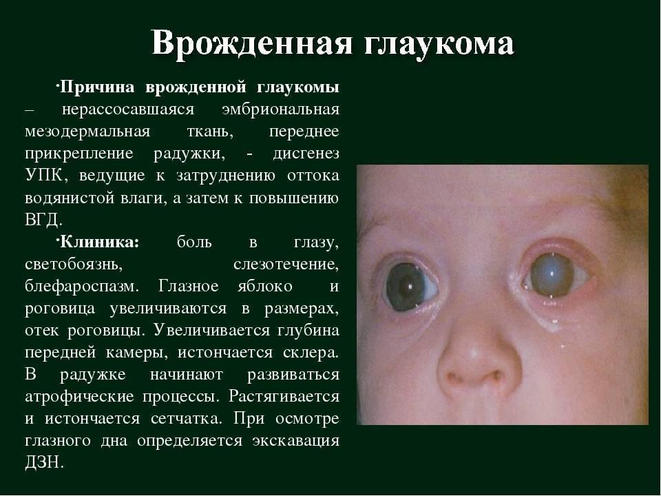 Глаукома у детей - симптомы болезни, профилактика и лечение глаукомы у детей, причины заболевания и его диагностика на eurolab