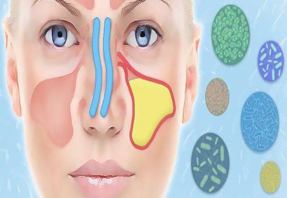 Гайморовы пазухи носа: причины воспаления. лечение