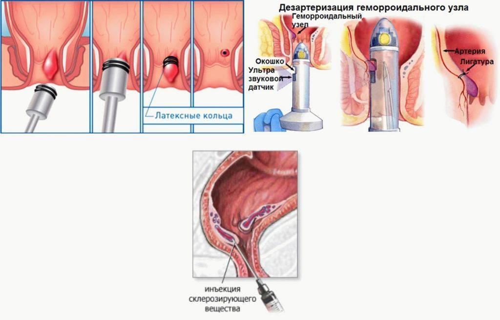 Лечение геморроя в домашних условиях при беременности