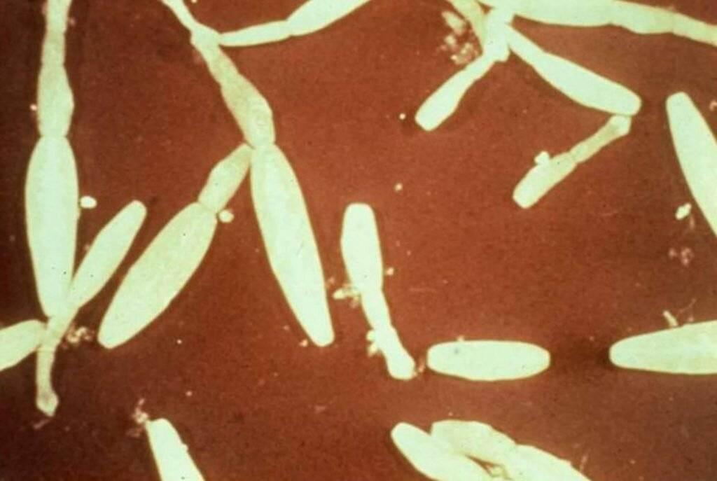 Симптомы эхинококкоза у людей