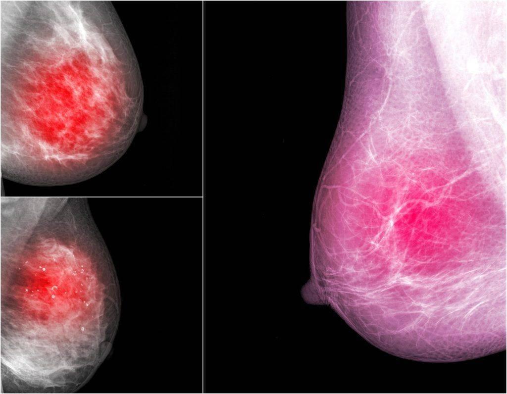 Опухоль молочной железы: виды, симптомы и диагностика