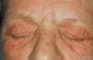 рентгеновский дерматит лечение