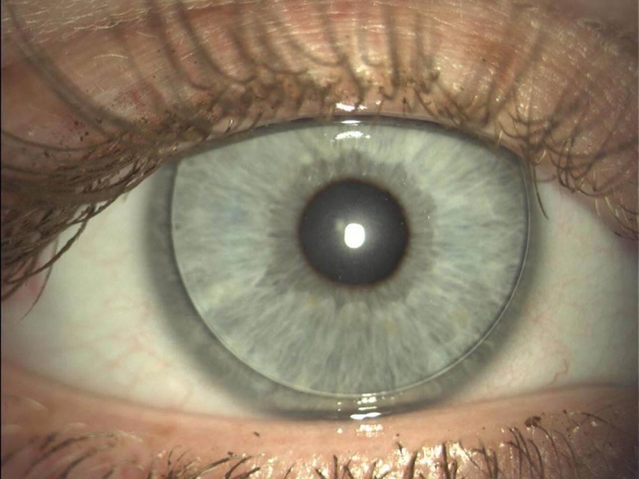 Можно ли капать тауфон на линзы при ношении, визин, окуметил, глазные капли, которые используют на глазах в контактных изделиях