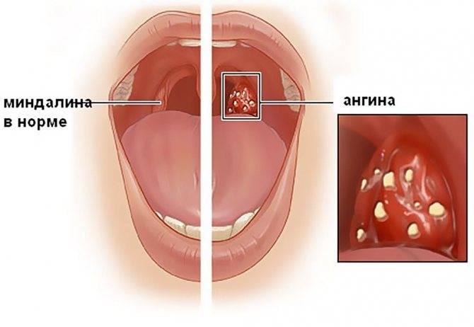 ангина причины заболевания