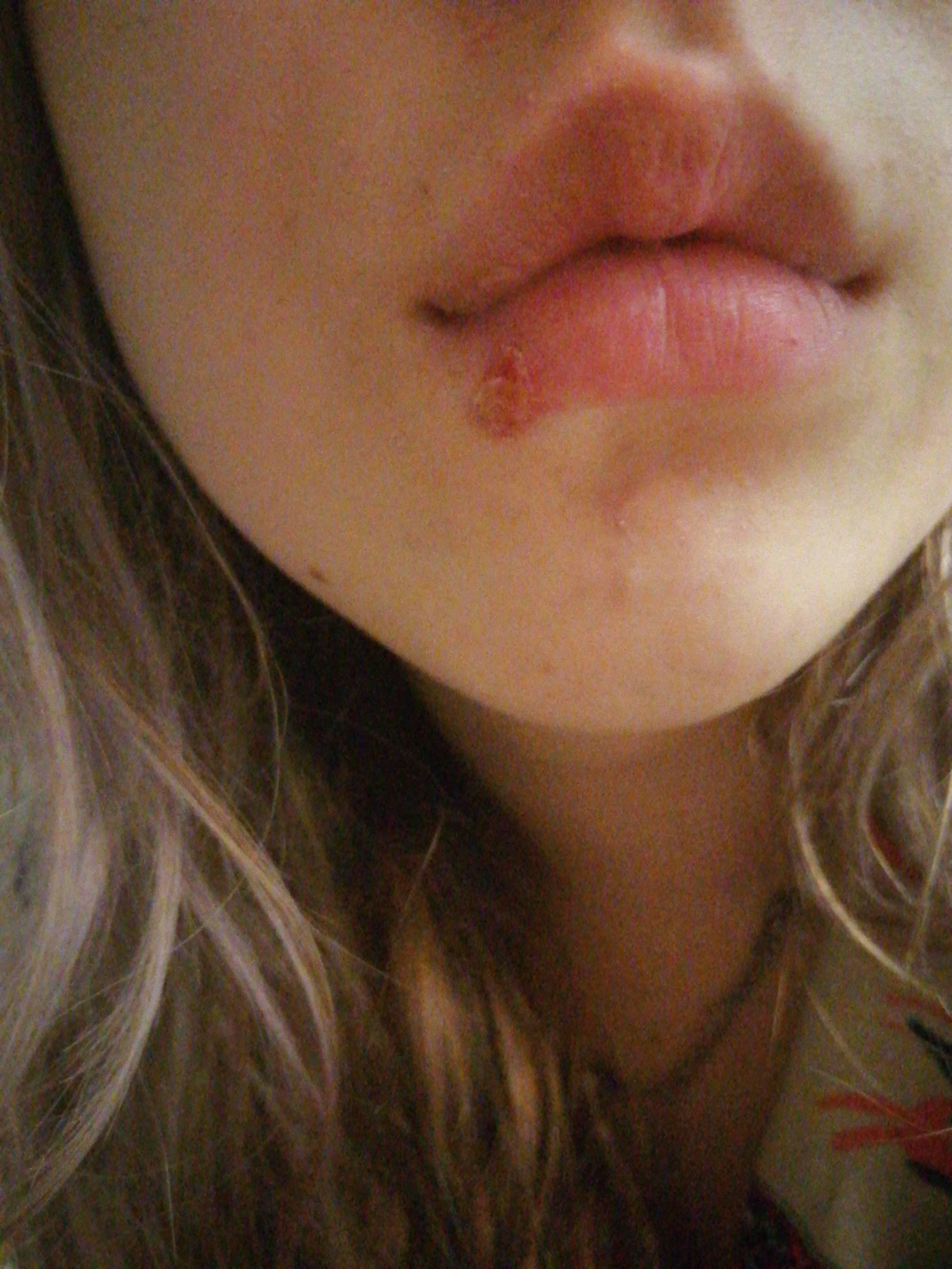 Герпес на губах не проходит слишком долго — найдите и устраните причину
