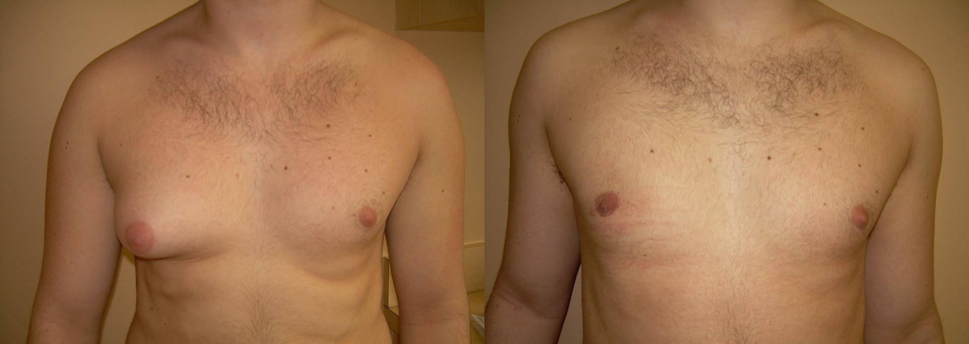 Причины гинекомастии у мужчин — диагностика и лечение гинекомастии