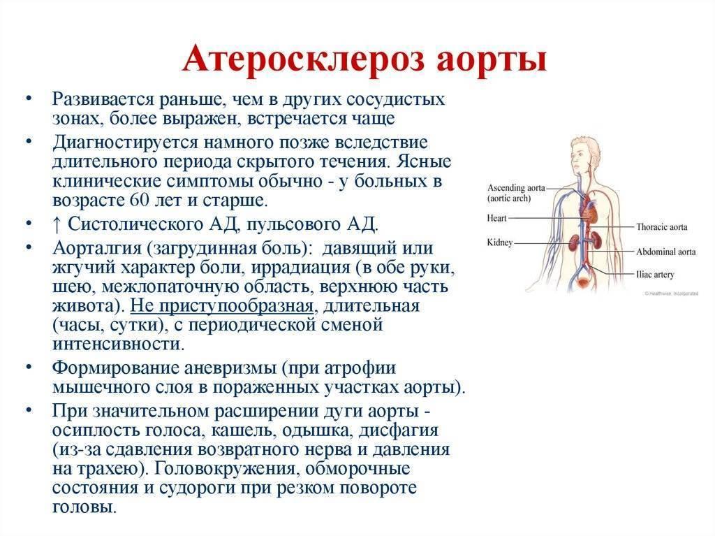 атеросклероз аорты и ее ветвей
