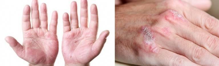 как заразится дерматитом