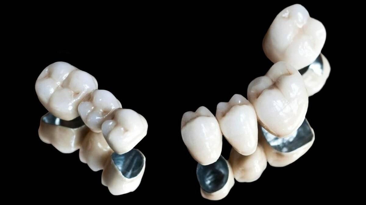 Обточка зубов под металлокерамику. причины проведения, различные методы