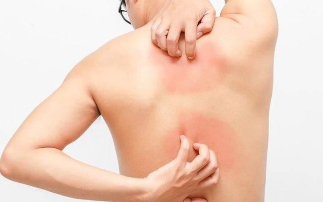 Что делать, если чешется кожа при заболевании печени