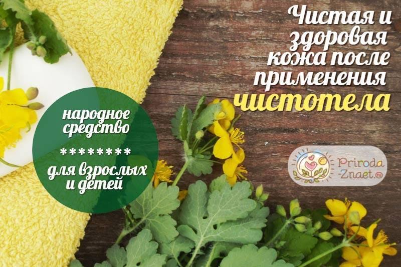 Моя история про атопический дерматит - запись пользователя ирина (id941337) в сообществе осторожно, аллергия! в категории атопический дерматит - babyblog.ru