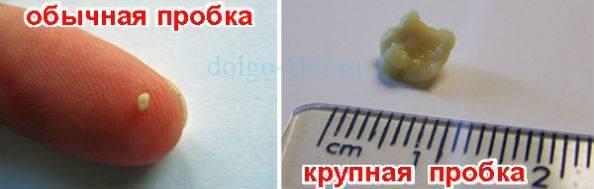 вакуумная чистка миндалин