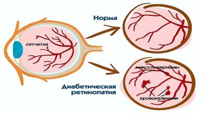 Ангиопатия сетчатки: причины развития, виды заболевания