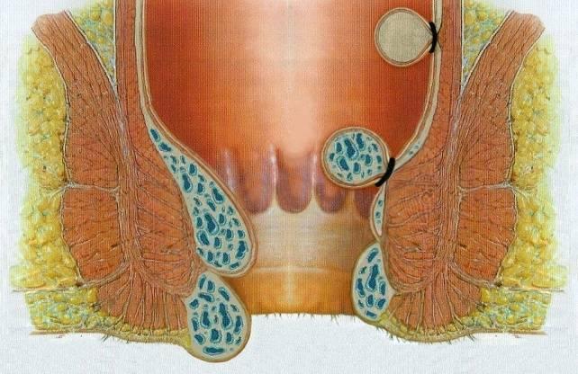 Как отличить геморрой от рака прямой кишки и может ли быть связь между ними