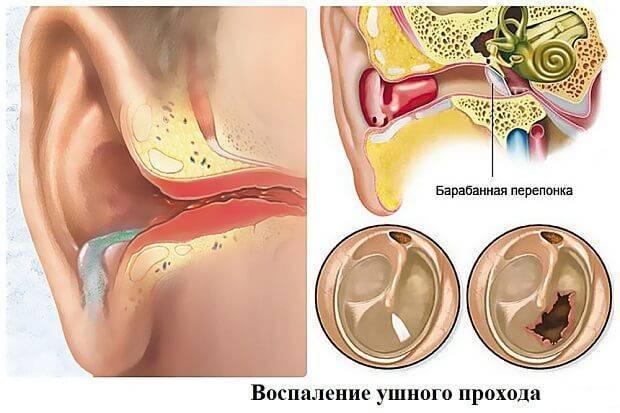 При глотании болит ухо лекарство