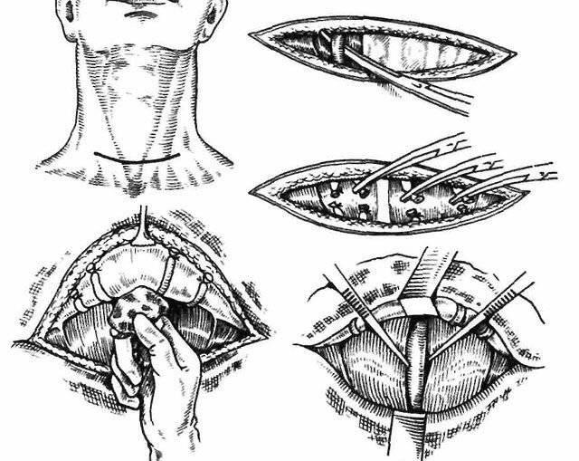 операция по удалению узла на щитовидной железе