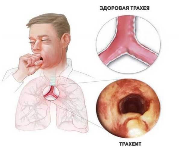 Чем лечить трахеидный кашель у ребенка