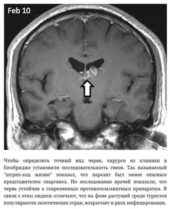 Виды мозговых паразитов, симптомы, диагностика и лечение
