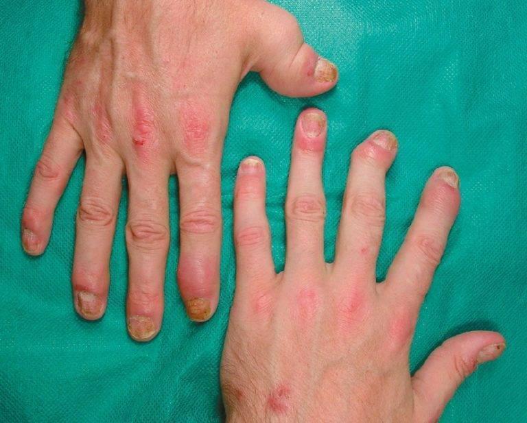 Псориатический артрит – симптомы и лечение, которое реально помогает
