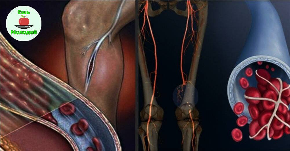 Атеросклероз сосудов: лечение, симптомы, диагностика и осложнения