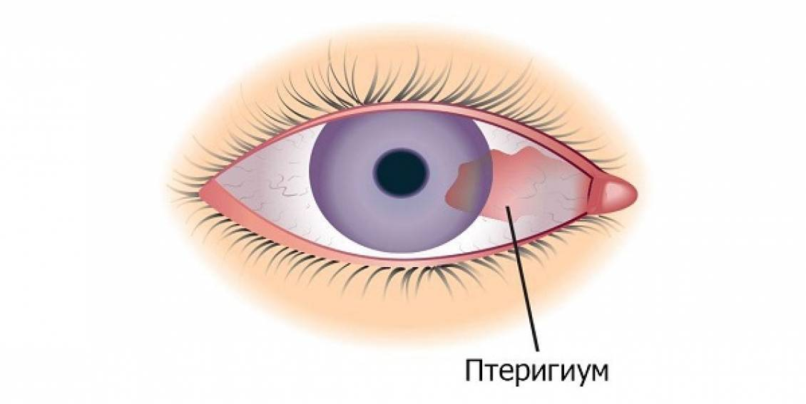 птеригиум лечение