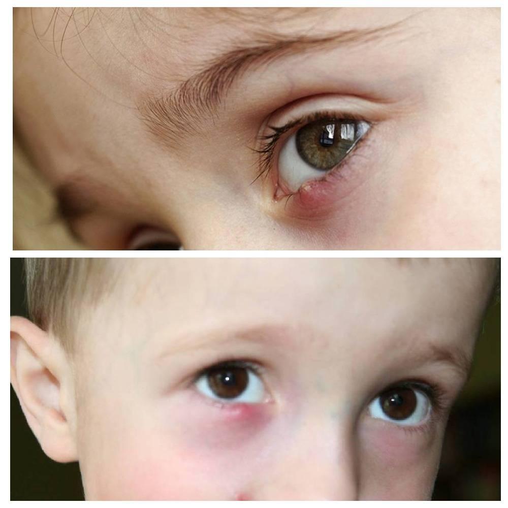 ячмень у ребенка комаровский