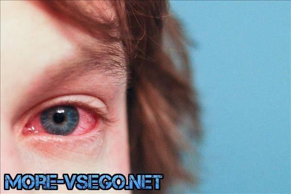 Снимаем воспаление глаз в домашних условиях: народные средства от конъюнктивита