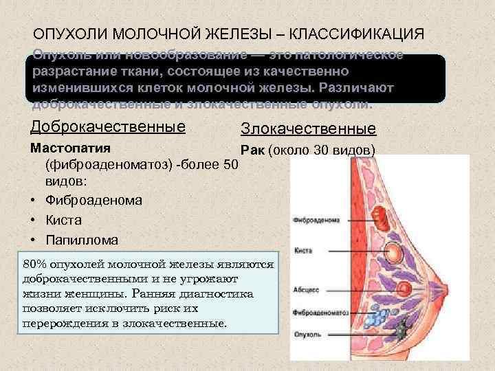 доброкачественная опухоль молочной железы симптомы