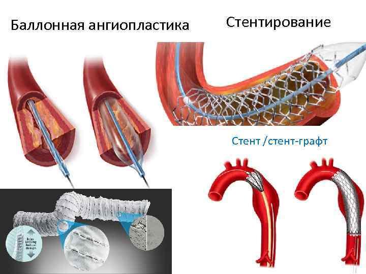 Ангиопластика нижних конечностей цена