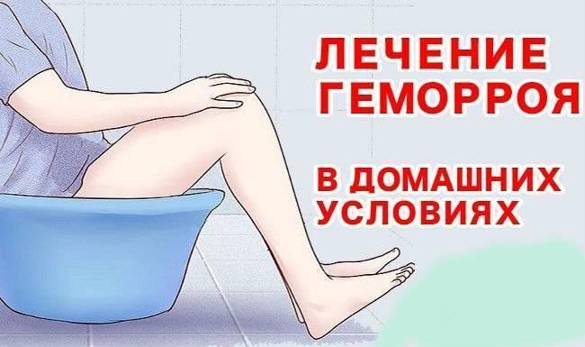 геморрой 2 степени лечение
