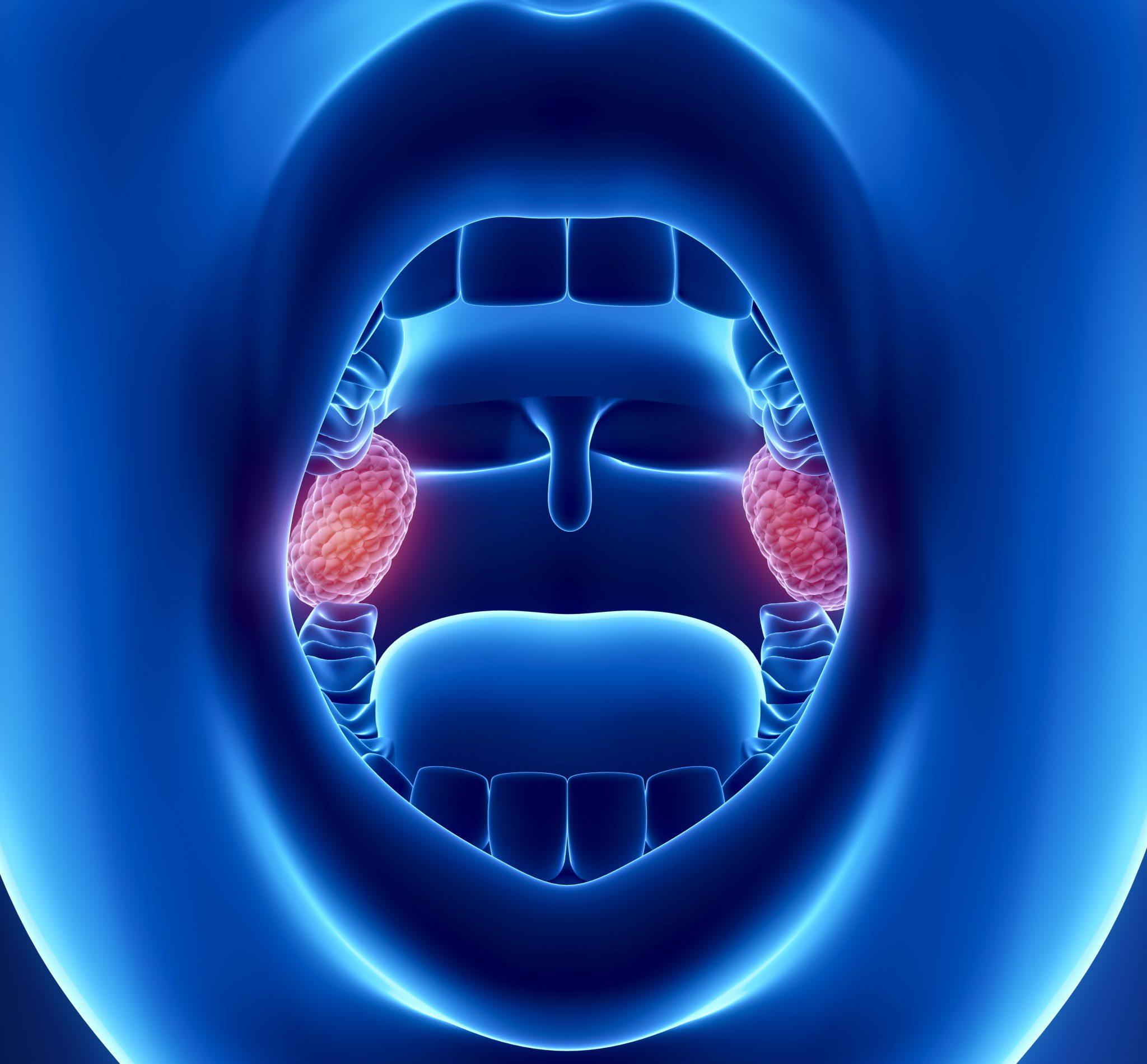 лейкоплакия гортани