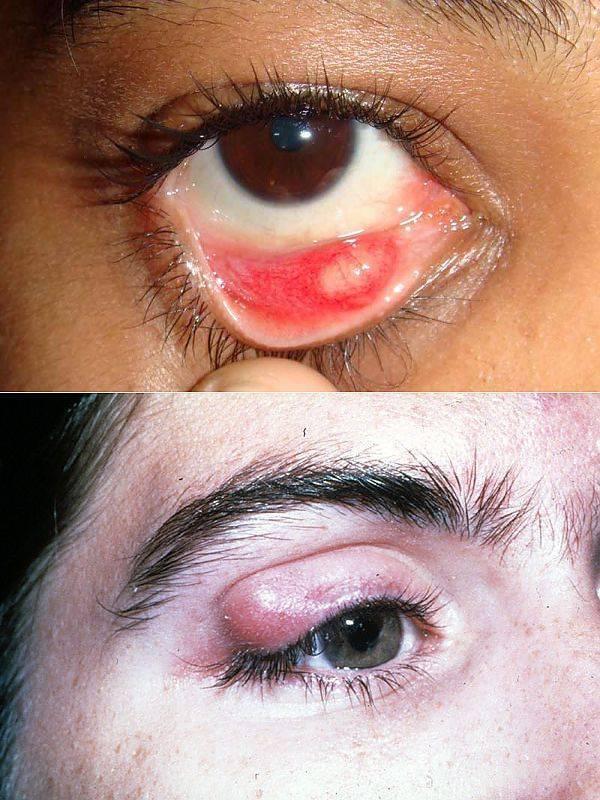 Халязион у детей: фото, лечение халязиона на глазу у ребенка, причины и операция
