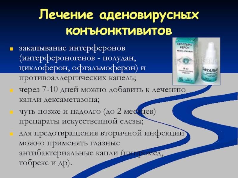 аденовирусный конъюнктивит лечение