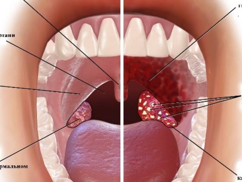 Почему может появиться шишка на гланде? какими симптомами сопровождается?