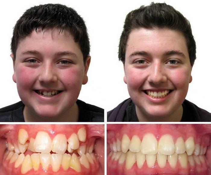 прикусы зубов