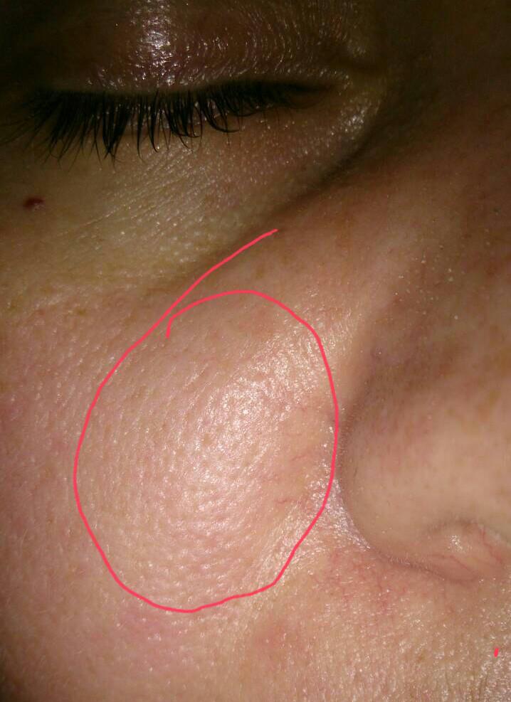 Болит внутри носа и снаружи: причины. чем лечить?