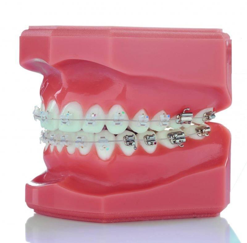 Керамические брекеты – цены на установку керамической брекет системы в москве   сеть стоматологических клиник «президент»