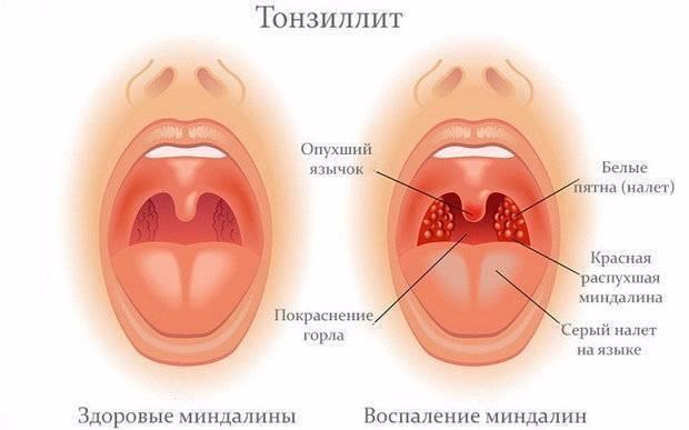 тонзиллит симптомы причины профилактика и лечение