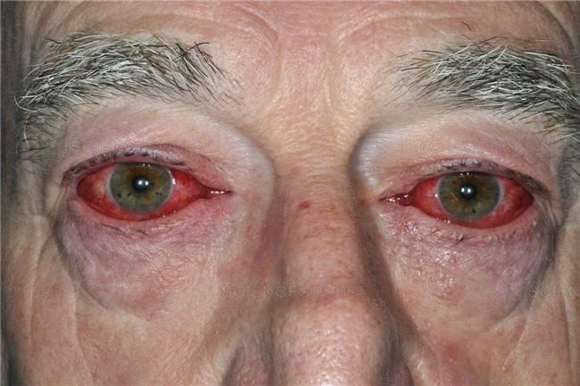 надуло глаз симптомы и лечение