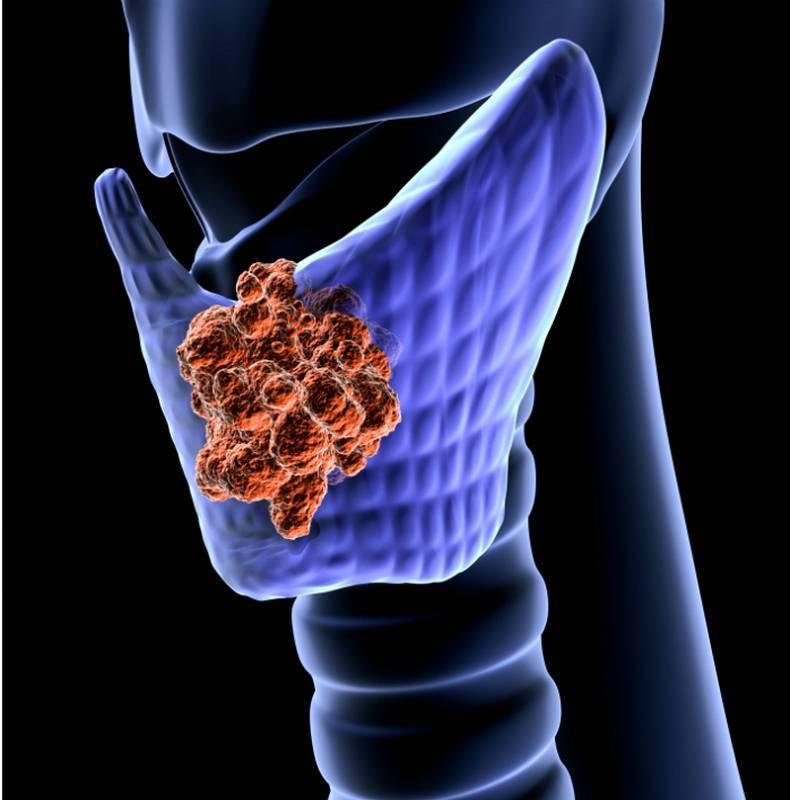 Медуллярный рак щитовидной железы: симптомы, прогноз, лечение, стадии и диагностика