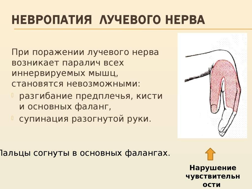 лфк при невропатии лучевого нерва
